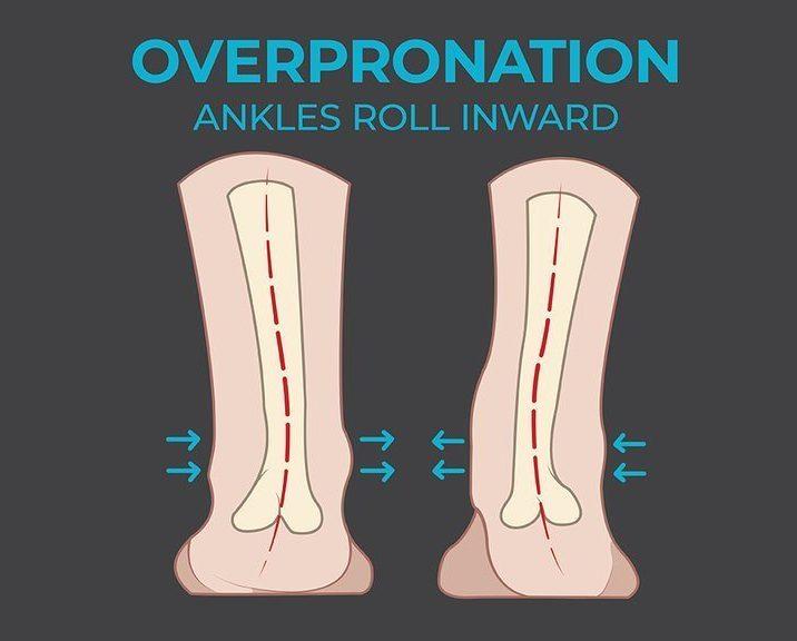 an illustration of overpronated feet