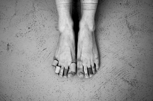 black and white image of two feet that are bruised and bandaged