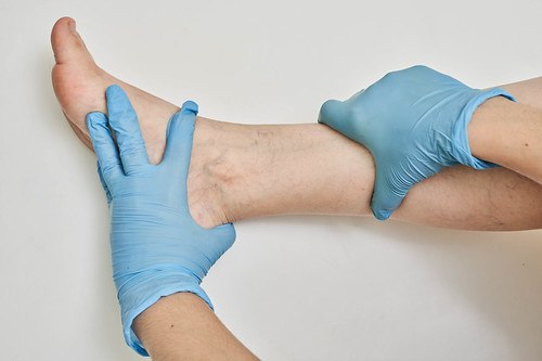 someone in medical gloves inspecting a foot